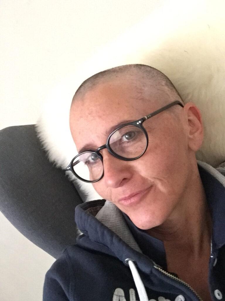 kaal door chemokuur